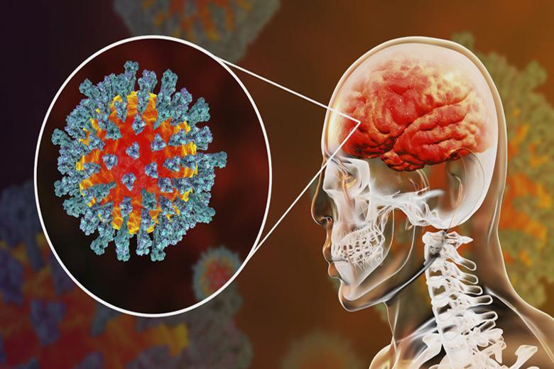 احتمال سکته مغزی در بیماران مبتلا به کرونا ، حمله این ویروس به سیستم اعصاب