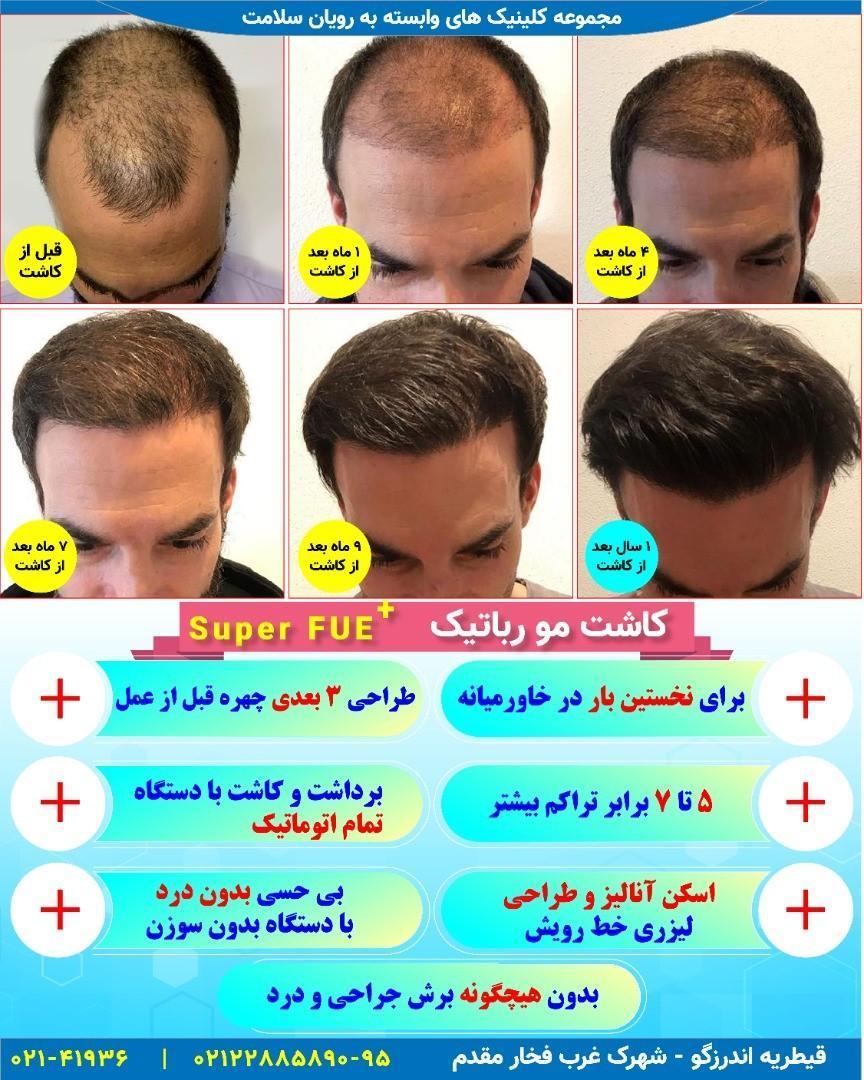 آیا نتایج کاشت مو دائمی است؟