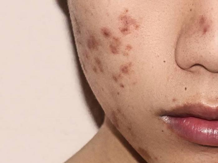 ضایعات پیگمانته پوست دقیقا چیست ؟