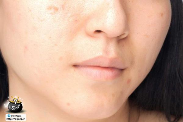 36 مورد از بدترین اشتباهات پوستی به گفته متخصصین که نباید انجام گردد